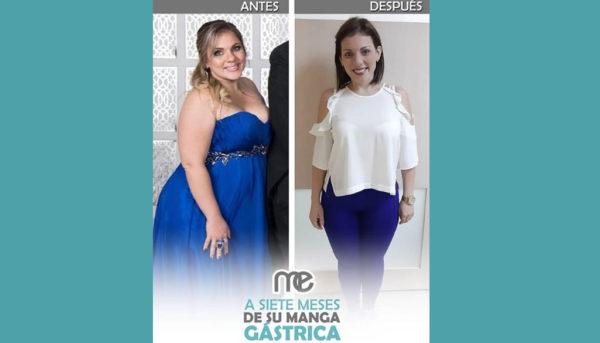 cirugia_bariatrica_anna